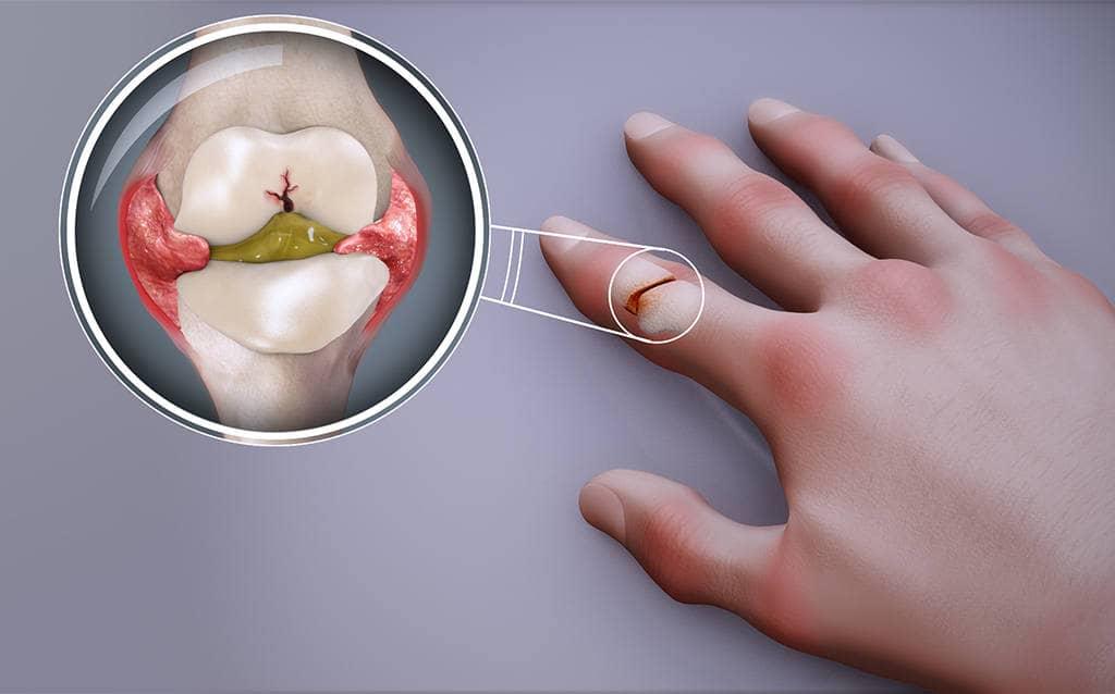 Артрит, заболевание суставов