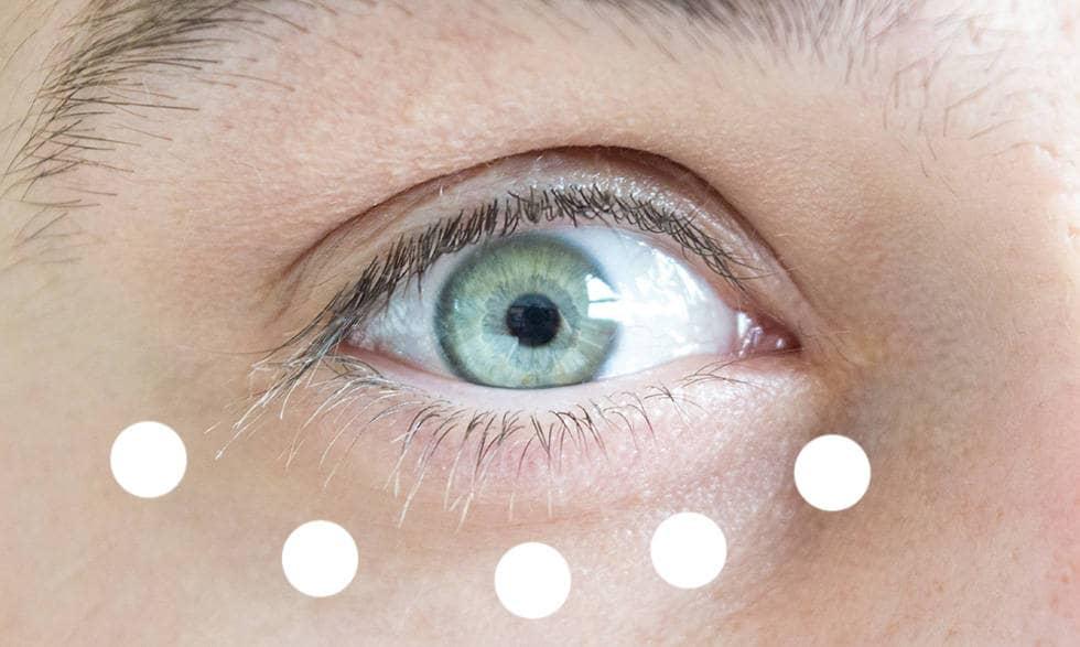 Нанесения адапален в зоне глаза