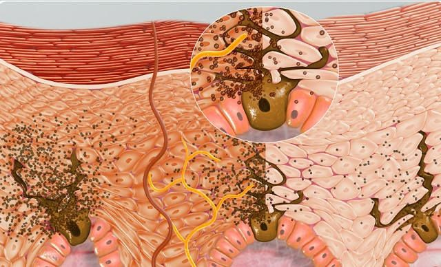 Меланин для преодоления повреждения ДНК, вызванного УФ-излучением