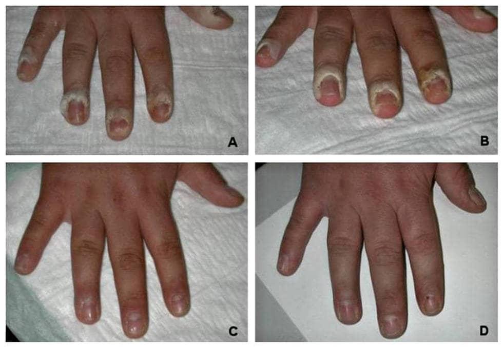 Удаление бородавок с пальцев рук