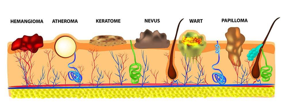 Анатомическая структура бородавки